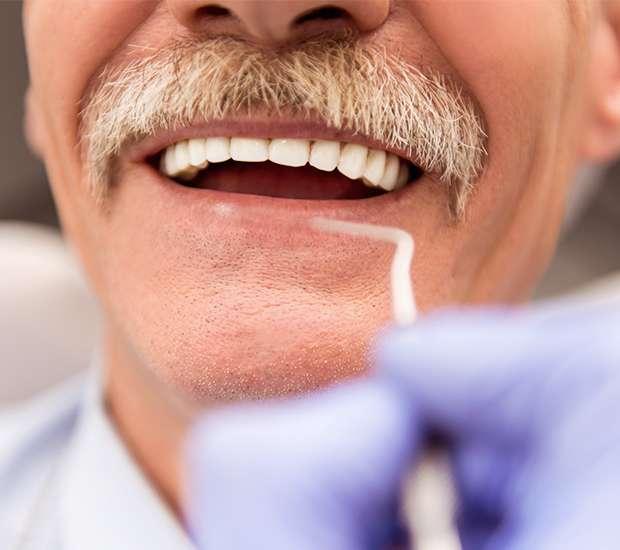 Prineville Adjusting to New Dentures