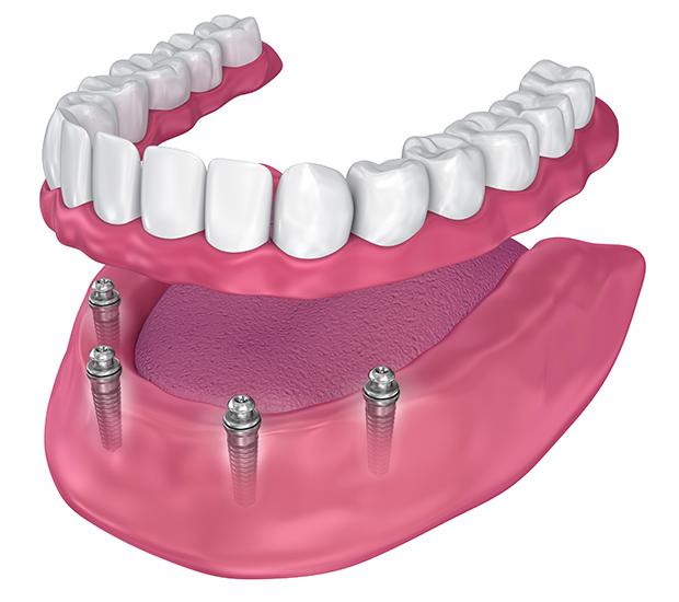 Prineville All-on-4 Implants