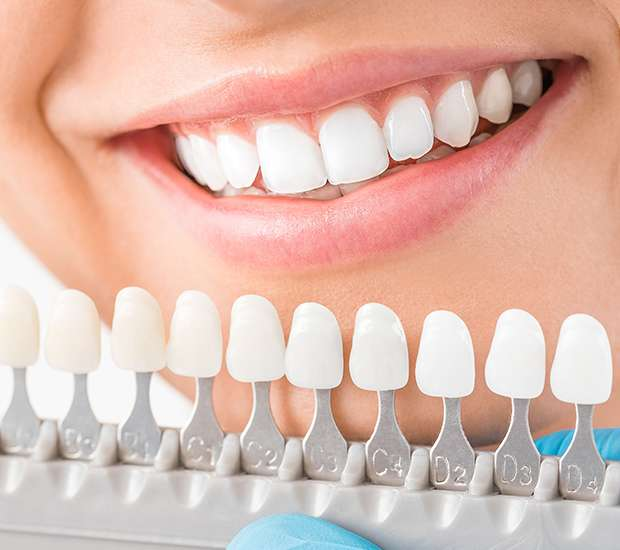 Prineville Cosmetic Dentist