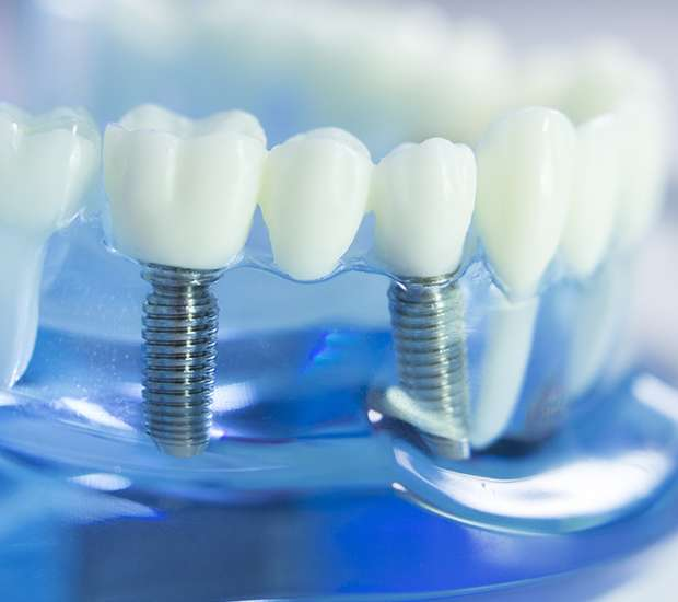 Prineville Dental Implants