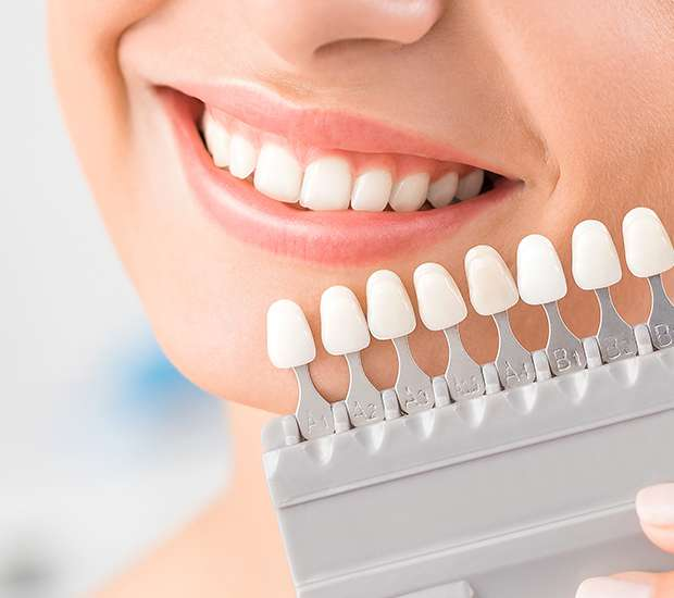 Prineville Dental Veneers and Dental Laminates