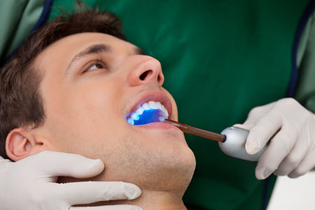 Questions To Ask If You Are Considering Teeth Whitening