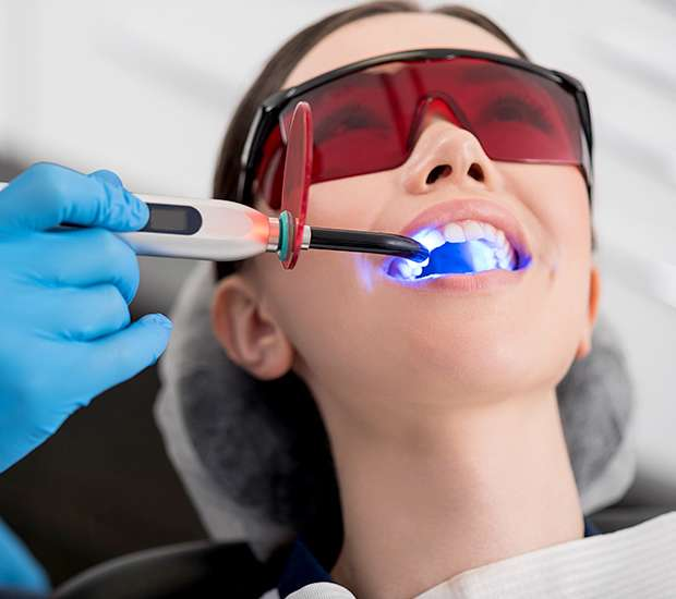 Prineville Professional Teeth Whitening